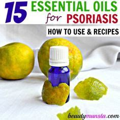 Liver Detox Diet For Psoriasis by 1000 Images About Psoriasis Treatment On