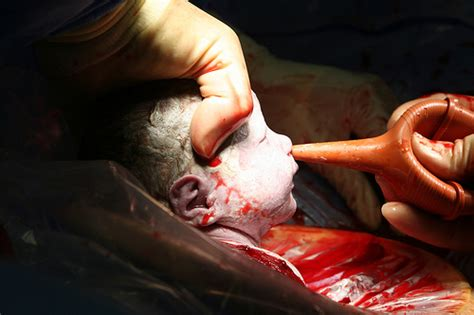c section meaning photo