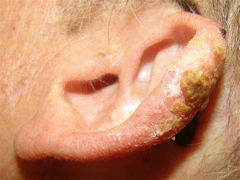led light skin cancer actinic keratosis pictures causes and treatment