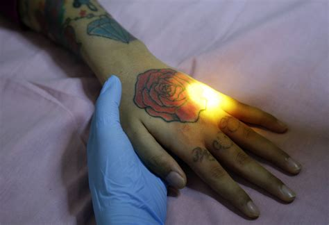 tattoo removal islam indonesia clinic gives relief to muslims with tattoo