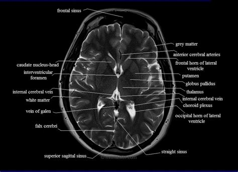 mri cross sectional anatomy brain mri anatomy free mri axial brain anatomy