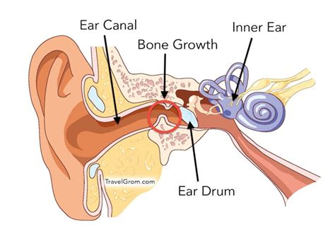 diagram of ear canal with wax surfer s ear symptoms causes and treatment travelgrom