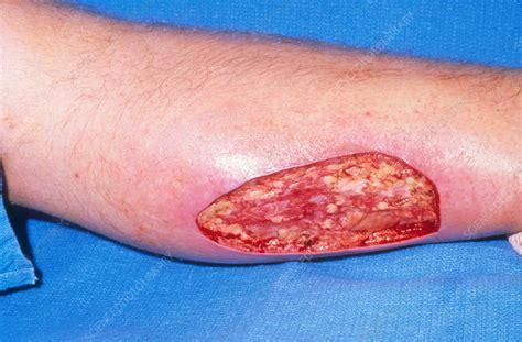 Spl Skincare Madiun skin grafting stock image c009 4642 science photo library
