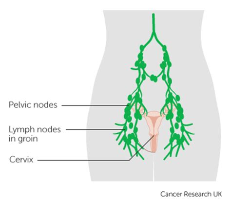 lymph nodes groin diagram treatment for advanced cervical cancer canadian cancer