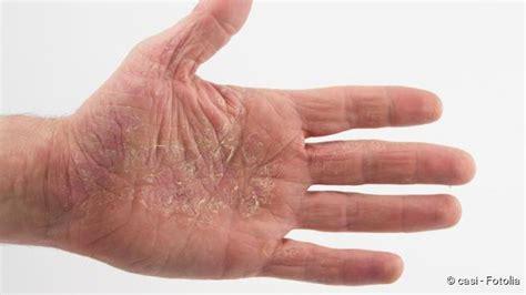 Nikotin Am Finger Entfernen by Neurodermitis Anzeichen Ausl 246 Ser Vorbeugung Netdoktor De