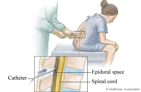 spinal or epidural for planned c section epidural placement for labor