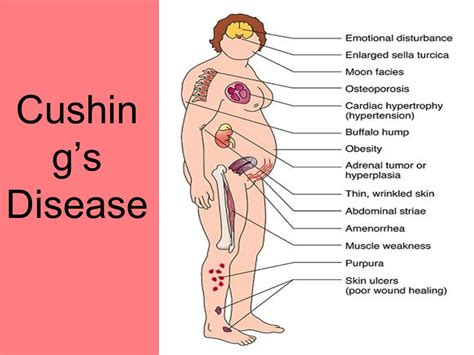 cushings disease treatment introduction to endocrine ppt
