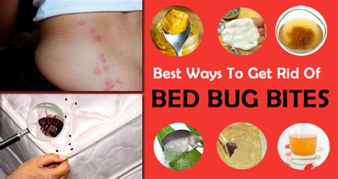 how to get rid of bed bugs bites how to get rid of bed bug bites itchiness fast