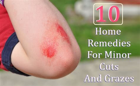 10 home remedies for minor cuts and grazes care health