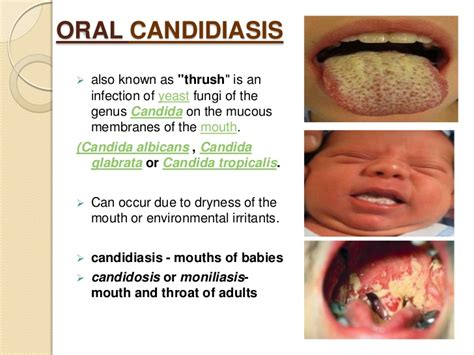 cause-of-oral-thrush-ladies