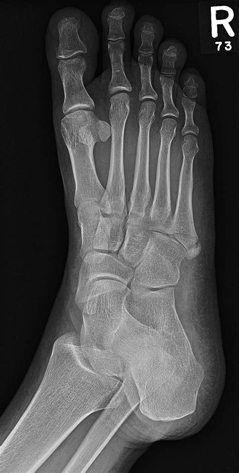 Pseudo-jones fracture | Image | Radiopaedia.org