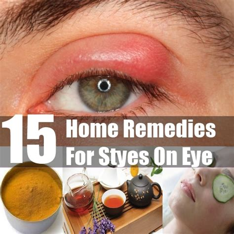 stye remedies gallery