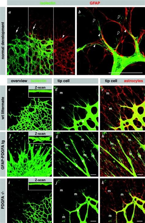 fractal pattern formation in human retinal vessels fig4 vegf guides angiogenic sprouting utilizing