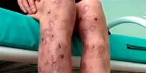Krokodil Also Search For Mexican Reportedly Injects Krokodil Into Updated