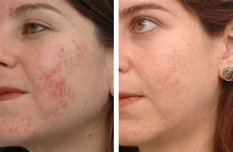 remove acne scars how to get rid for acne scars home remedies