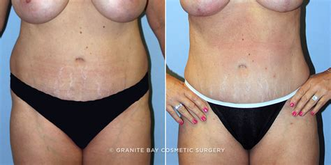 c section scar removal plastic surgery tummy tuck scar revision granite bay cosmetic surgery