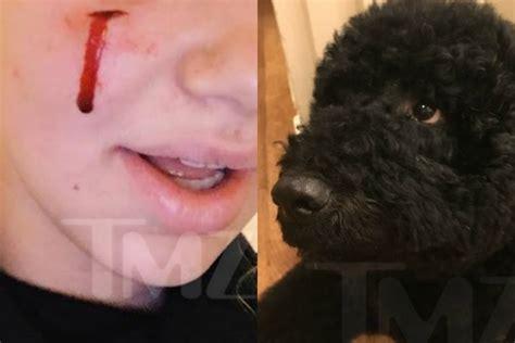 Bad Dog President Obama S Dog Bites White House Visitor Off Leash K9 Training
