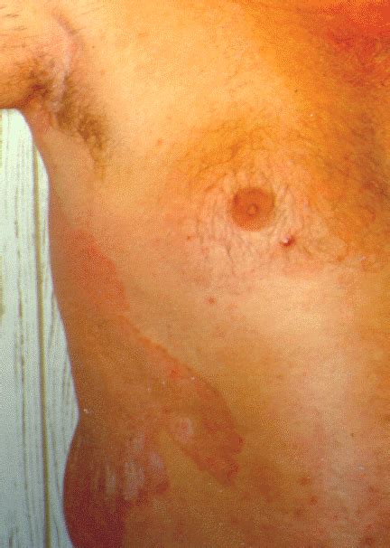 fungal skin infections ringworm tinea corporis or ring worm is a treatable fungal infection