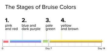 bruise colors why do my bruises so many different colors