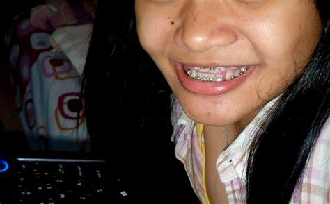 Biaya Pemutihan Gigi Jogja ragu pasang kawat gigi karena takut dan mahal klinik gigi dental yogyakarta