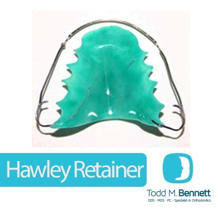 retainer colors this is a removable retainer made of a combination of