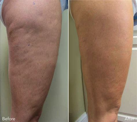 lipo light treatment reviews laser lipo treatment reviews uk the of