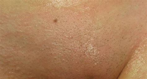brazilian laser hair removal pictures wax photos before and after hair removal pics before and