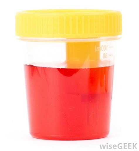 Blood In Urine And Stool by Hemophilia On Emaze
