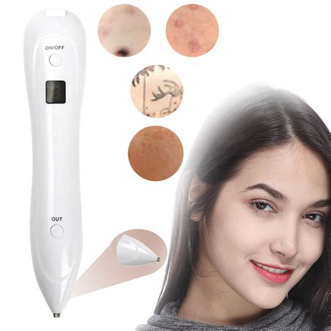 tattoo removal coupon laser freckle removal machine skin mole removal spot