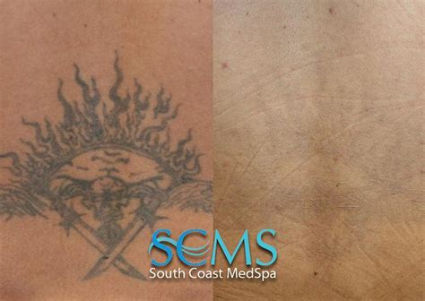 natural tattoo removal at home best 25 removal ideas on