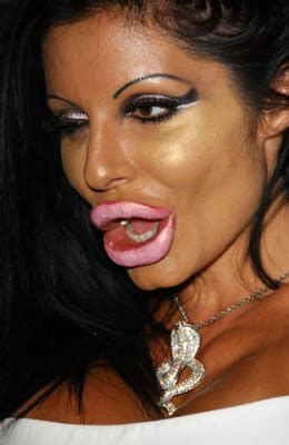 lip implants gone wrong april 2010 cosmetic plastic surgery