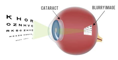 Resume Normal Activities After Cataract Surgery Cataract