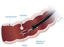 blut im stuhl nach darmspiegelung koloskopie