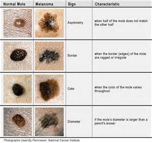 telling normal moles from melanoma skin cancer