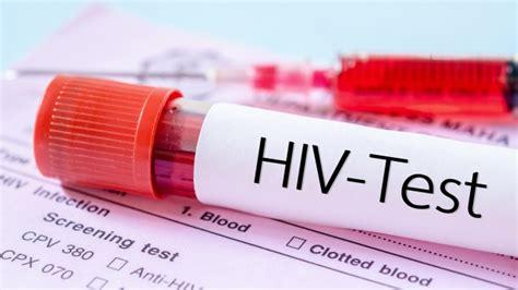 hiv test zuhause bald in apotheken ministerium pr 252 ft zulassung hiv