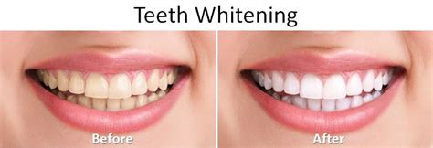 comfort dental teeth whitening before and after pictures pensacola fort walton beach fl