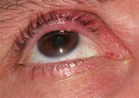 eye stye pictures info stye