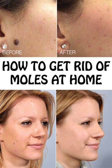 1000 images about b moles on pinterest tea tree oil