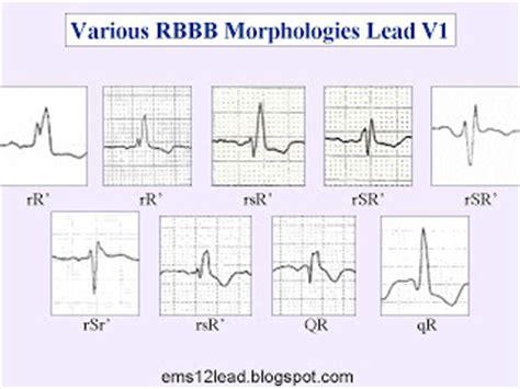 12 lead lbbb related keywords 12 lead lbbb long tail