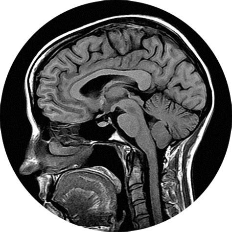 Garden State Radiology Mri Garden State Radiology Network
