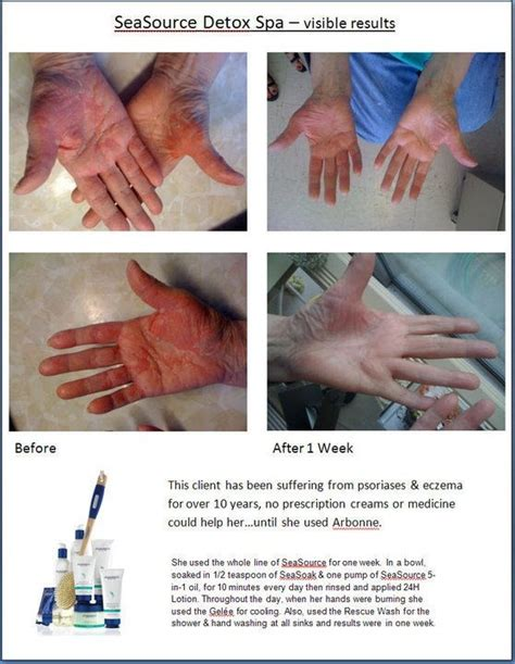Can I Use Arbonne Detox Gel After Radiation Treatment by 20 Best Images About Seasource Detox Spa On