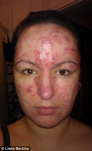 woman left suicidal by acne now has clear skin thanks to