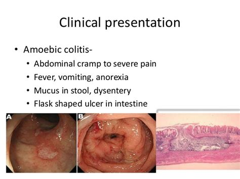 Stomach Crs And Mucus In Stool by Amoebiasis