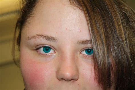 strange eye colors eye color change