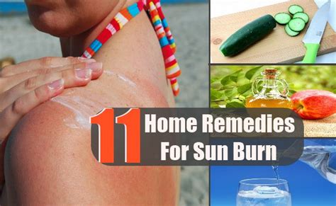 A Simple Home Remedy For Sunburn by 11 Easy And Effective Home Remedies For Sun Burn Search