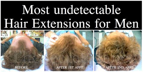 male hair extensions before and after pics for gt damaged hair before and after men