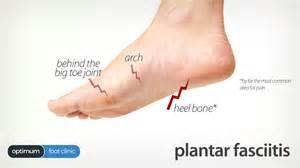 plantar fasciitis heel explained