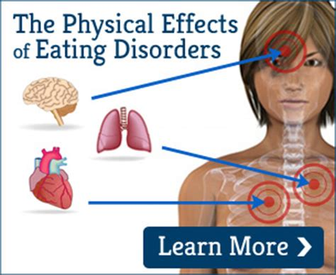 signs of comfort eating signs and symptoms of binge eating futures of palm beach