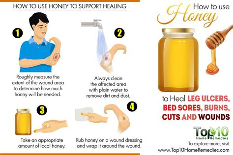 how to treat bed sores at home home remedies for bed sores delectable home remedies for