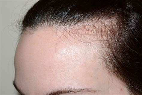 new hair growth at forehead hairline difficult to style bangs hairline advancement hairline transplant miami fl